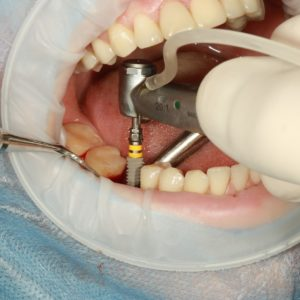 Types of dental implants: