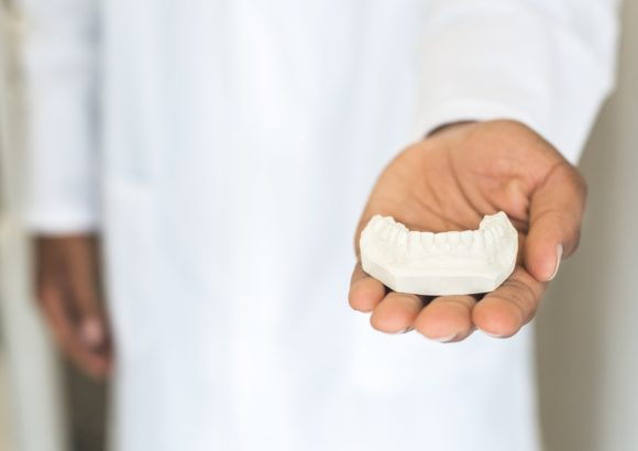 Имплантация зубов: За и против