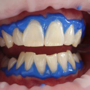 Профессиональная гигиена полости рта